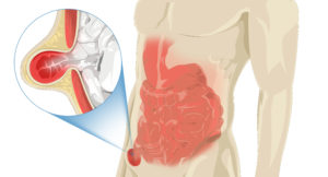 An illustration of a male body shows the intestines with a magnified hernia protruding through the abdominal muscles.