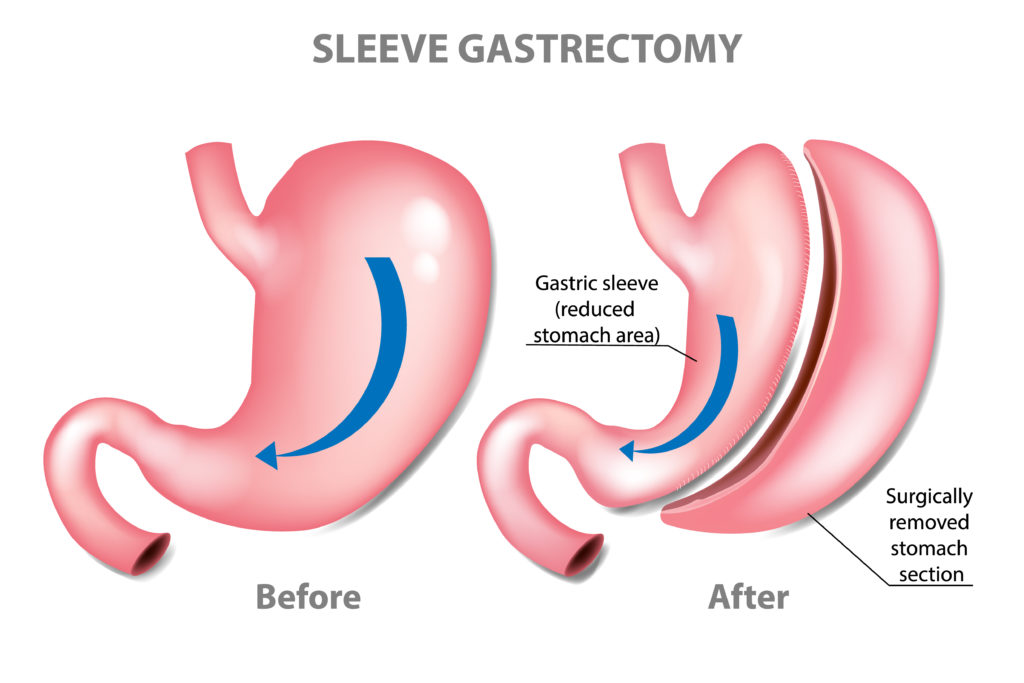 An illustrated diagram shows the sleeve gastrectomy bariatric surgery on a stomach before and after surgery.